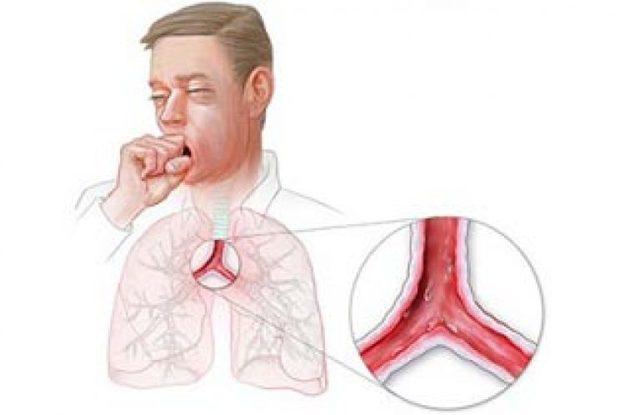 Трахеит у взрослых: симптомы и лечение, чем лечить хронический трахеит у взрослых