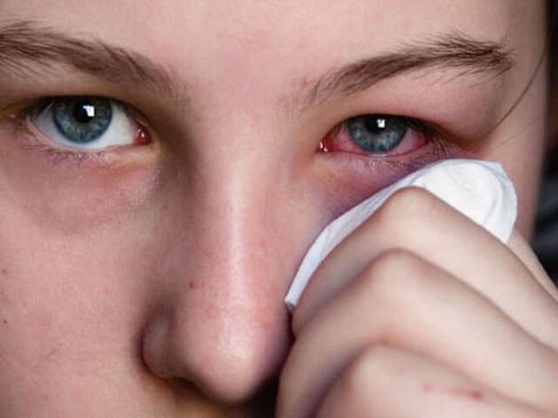 Ацикловир глазная мазь: инструкция по применению, цена, отзывы, аналоги глазной мази Ацикловир