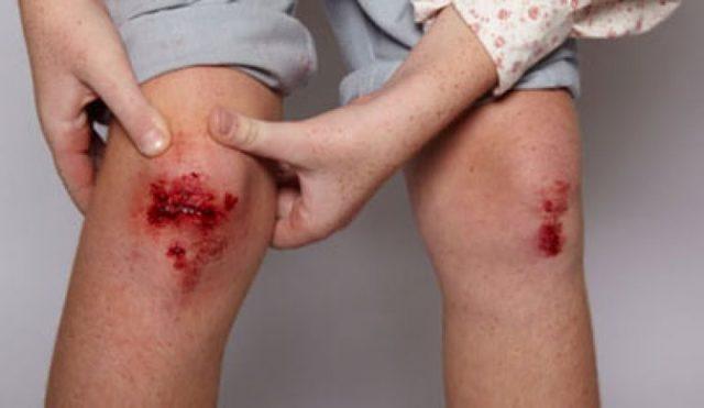 Столбняк: симптомы, лечение, профилактика столбняка у взрослого человека