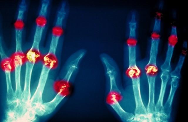 Ревматоидный артрит: симптомы, лечение, диагностика