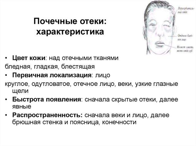 Отек лица: причины, что делать. Почему отекает лицо по утрам и как снять отек