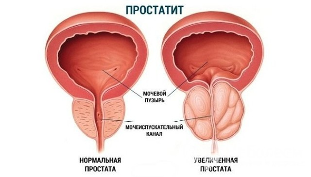 Олигурия: причины, симптомы, лечение олигурии
