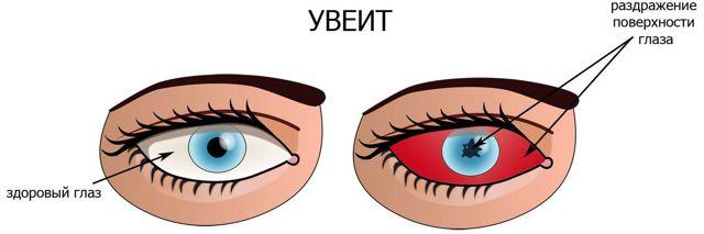 Ушные и глазные капли Комбинил-Дуо: инструкция по применению, цена, отзывы, аналоги