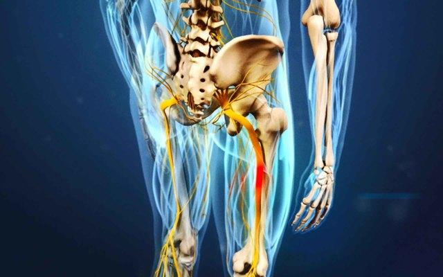 Воспаление, защемление седалищного нерва: симптомы, лечение