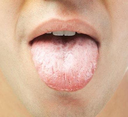 Желтый налет на языке, почему обложен язык желтым налетом у ребенка