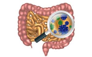 Дисбактериоз кишечника у взрослых: симптомы, лечение