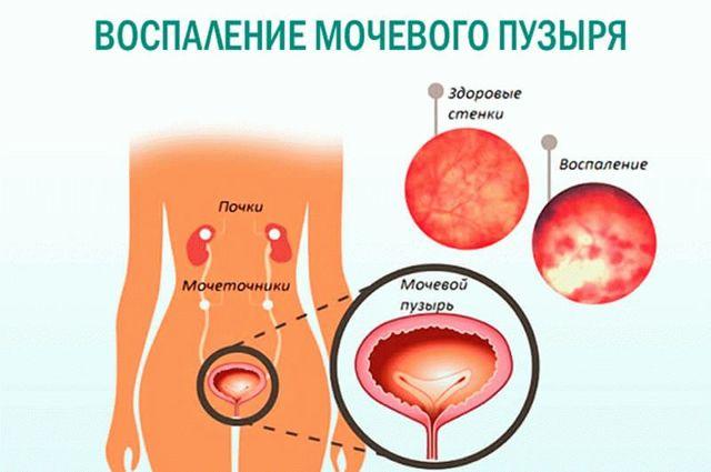 Зуд и жжение в интимной зоне у женщин: как лечить? Зуд, покраснение в интимном месте, выделения с запахом и без: причины, лечение