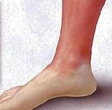 Рожа на ноге: фото, симптомы, как лечить рожу. Эффективное лечение рожи, начальная стадия фото