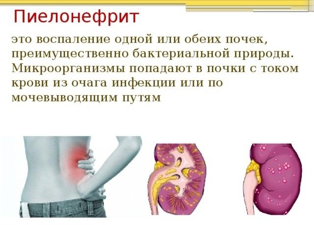 Потница у взрослых: фото, симптомы и лечение. Как выглядит потница у взрослых