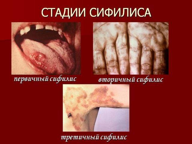 Первичный сифилис: симптомы, лечение. Первичный сифилис у мужчин и женщин