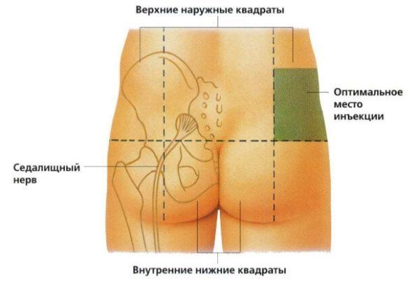 Кеторол уколы: инструкция по применению, цена, отзывы, аналоги обезбаливающих уколов Кеторол