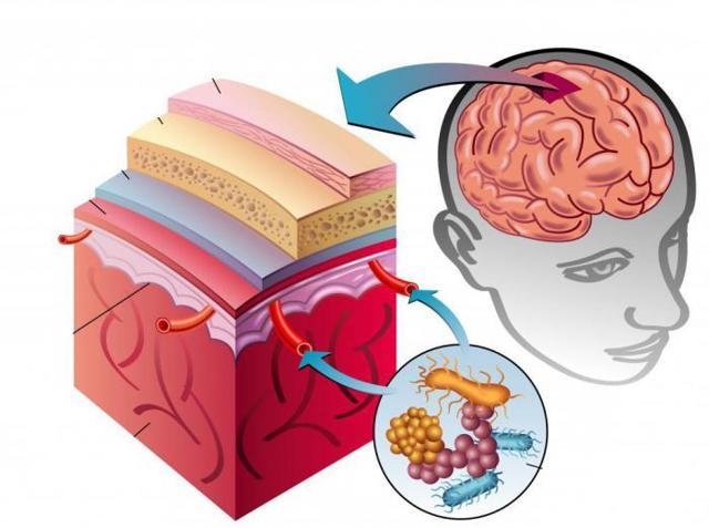 Менингит: симптомы, признаки, лечение, последствия менингита