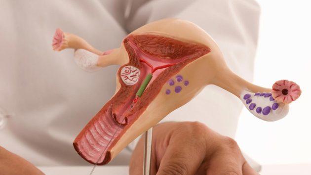 Спираль Мирена инструкция по применению, цена, отзывы, последствия внутриматочной спирали Мирена
