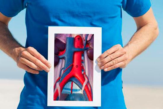 Аневризма аорты брюшной полости: симптомы, лечение, операция
