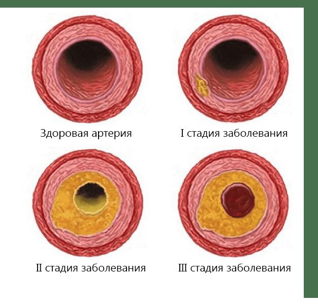 Атеросклероз сосудов головного мозга: симптомы и лечение. Как лечить атеросклероз