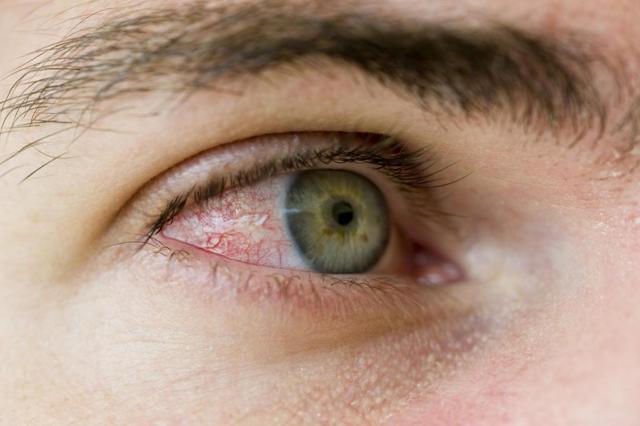 Дексаметазон глазные капли: инструкция по применению, цена, отзывы, аналоги