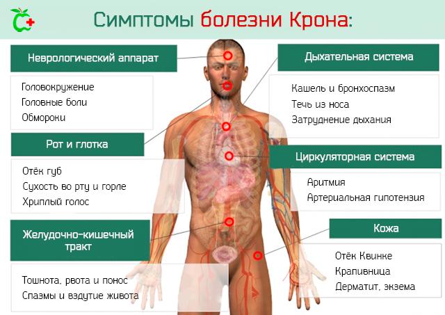 Болезнь Крона: симптомы и лечение у взрослых, фото, причины