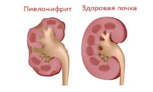 Острый пиелонефрит: симптомы, лечение