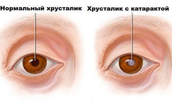Катаракта: причины, симптомы, лечение и профилактика, операция по удалению катаракты