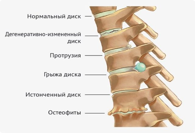 Протрузия дисков позвоночника: причины, симптомы, лечение