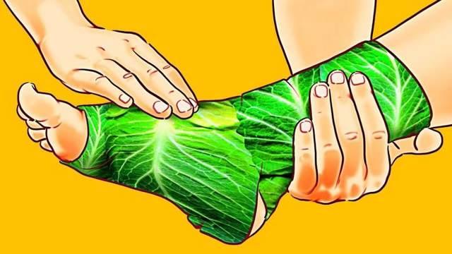 Экзема на ногах: причины, лечение экземы на ногах