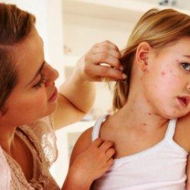 Корь у детей: симптомы, фото, лечение, профилактика кори