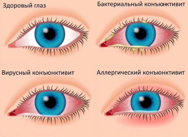 Солкосерил глазной гель: инструкция по применению, цена, отзывы, аналоги