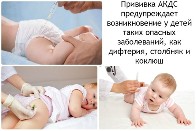 Коклюш у детей: симптомы, лечение, профилактика коклюша у детей