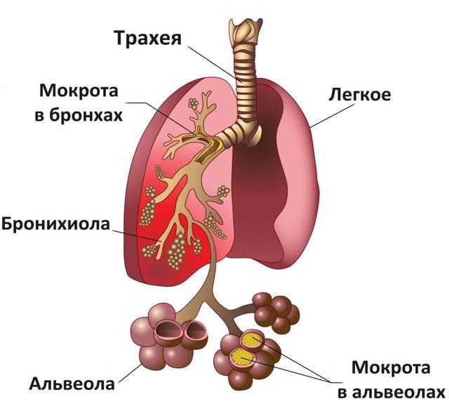 Золотистый стафилококк: симптомы, лечение