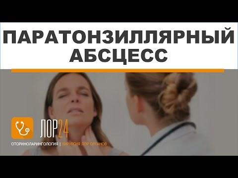 Паратонзиллярный абсцесс: симптомы, лечение