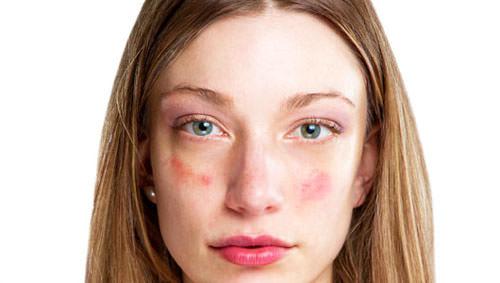 Причины почему чешется лицо и шея спереди под подбородком, зуд на лице — красное и горит, что делать с покраснением и без покраснения