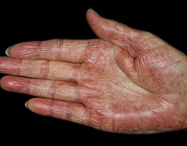 Системная красная волчанка: что это такое, симптомы, лечение
