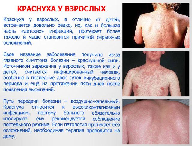 Краснуха у взрослых: фото, симптомы, лечение, профилактика