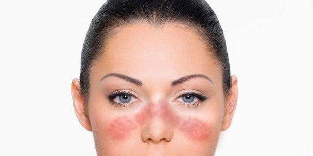 Красная волчанка: что это за болезнь фото, симптомы, причины, лечение