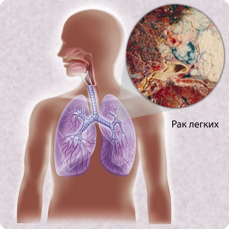 Диагностика рака легких, как определить рак легких