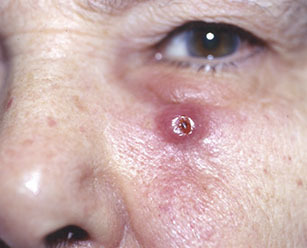 Рак кожи: фото начальной стадии, первые признаки и симптомы, лечение. Как выглядит рак кожи на фото