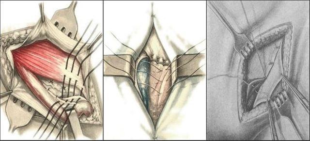 Паховая грыжа у женщин: симптомы, лечение, операция по удалению