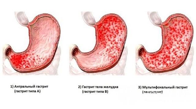 Хронический гастрит: симптомы, лечение хронического гастрита