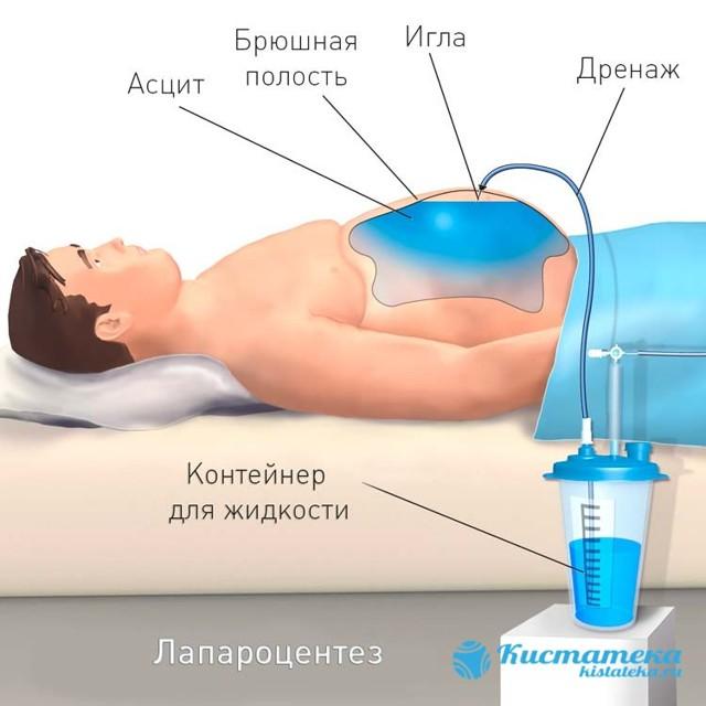 Водянка - причины, лечение, лечение водянки