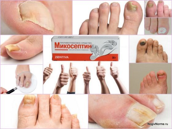 Микосептин: инструкция по применению, цена, отзывы, аналоги мази от грибка ногтей Микосептин