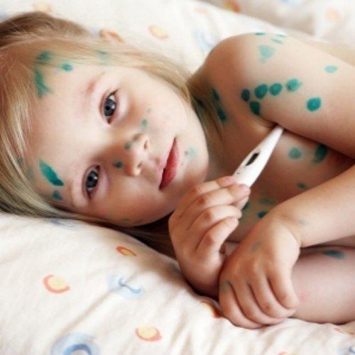 Ветрянка, ветрянка у детей: фото, симптомы и лечение, первые признаки, инкубационный период