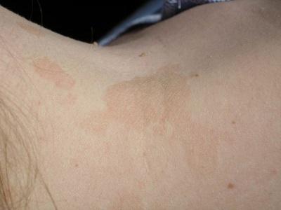 Солнечный лишай: лечение. Чем лечить солнечный лишай?