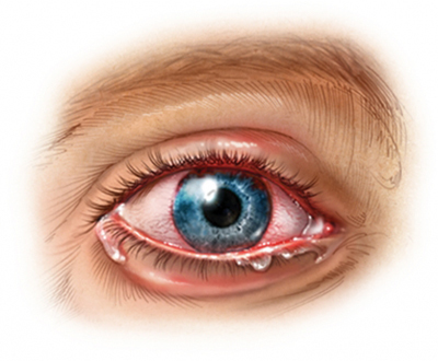 Гидрокортизоновая глазная мазь: инструкция по применению, цена, отзывы, аналоги