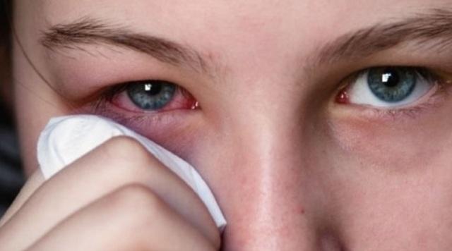 Декса-гентамицин глазная мазь: инструкция по применению, цена, отзывы, аналоги
