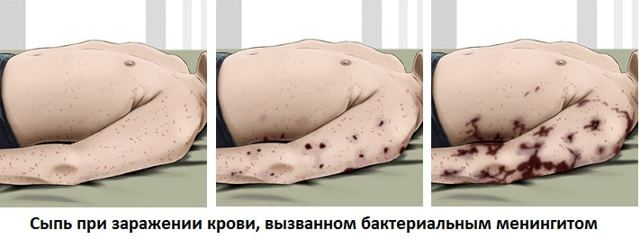 Менингит у взрослых: симптомы, признаки, лечение менингита