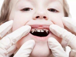 Лимфоузлы на затылке: расположение, фото, причины и лечение воспаления затылочных лимфоузлов у ребенка