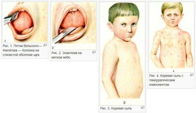 Корь: фото, симптомы, лечение, профилактика кори