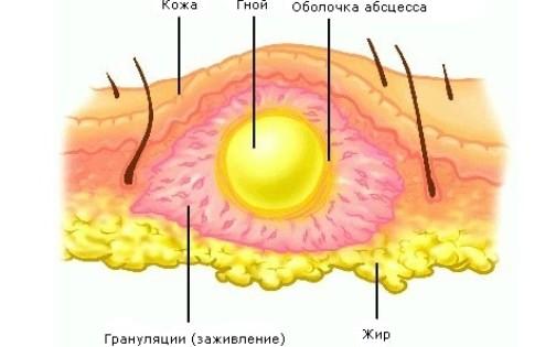Абсцесс после укола на ягодице (постинъекционный абсцесс): симптомы, лечение