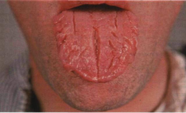 Твердый шанкр: симптомы, лечение
