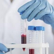 С-реактивный белок в крови повышен